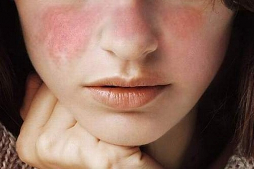 lupus sistemico